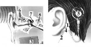 Koklear İmplant / Biyonik Kulak